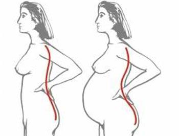 Боли в спине у беременных женщин