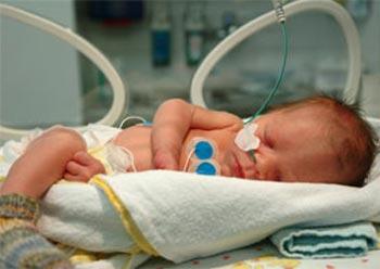 Угроза преждевременных родов. Роды на ранних сроках беременности