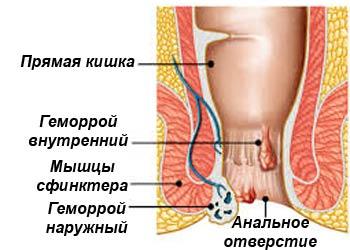 Геморрой у мужчин симптомы признаки лечение. Как лечить геморрой у мужчин