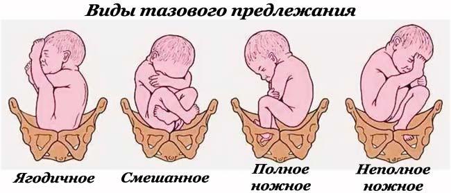 Тазовое предлежание ребёнка